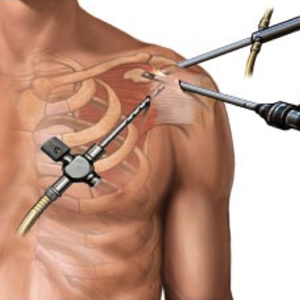 Shoulder arthroscopy treatment
