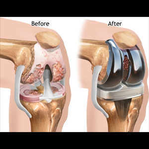 Total knee replacement Care